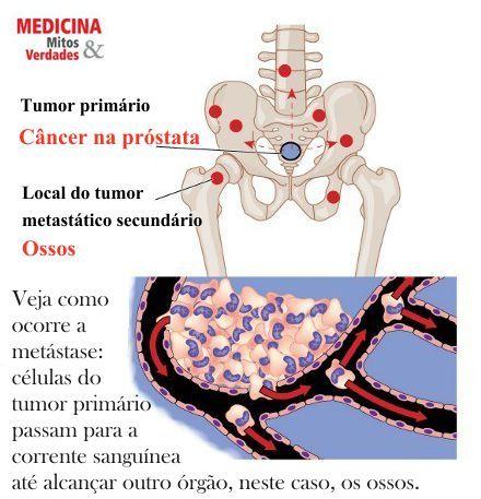 O que é metástase e quais os órgãos são mais atingidos