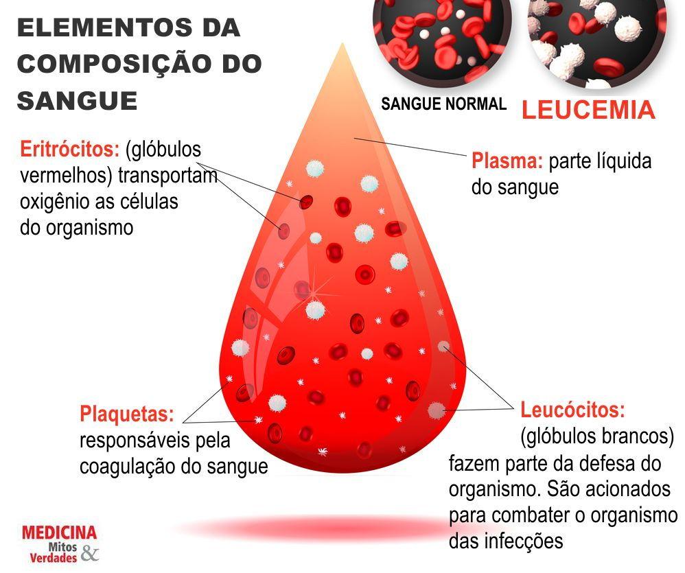 Câncer linfático e leucemia são a mesma doença?