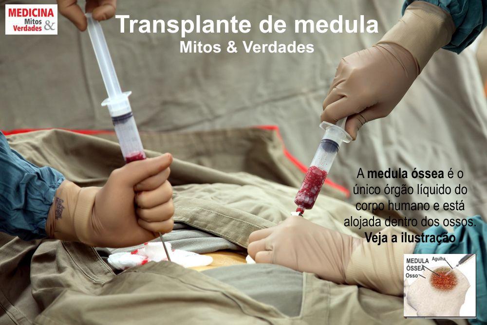 Como é feito o transplante de medula óssea