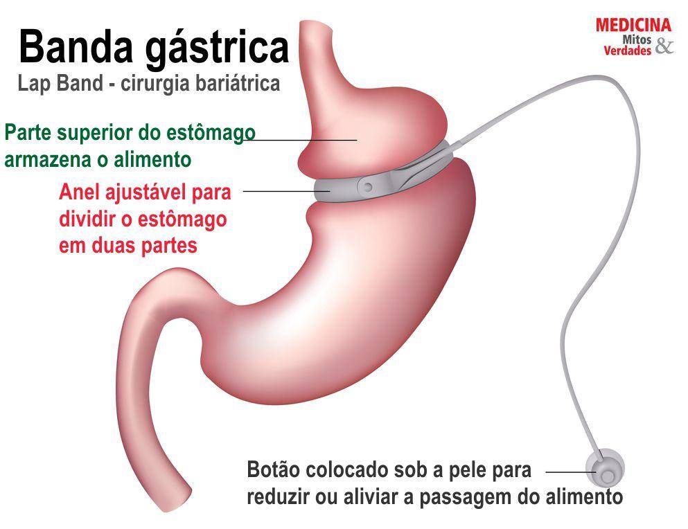 O que é técnica restritiva e disabsortiva da cirurgia bariátrica