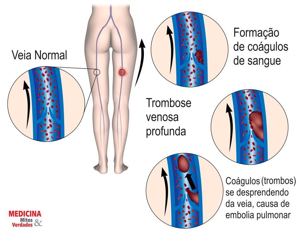 Inchaço, vermelhidão e dor nas pernas pode ser trombose