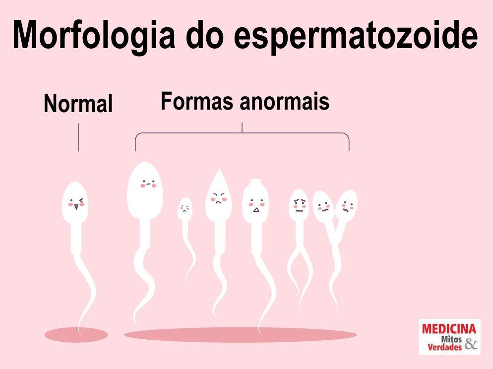 Causas e tratamento da infertilidade masculina