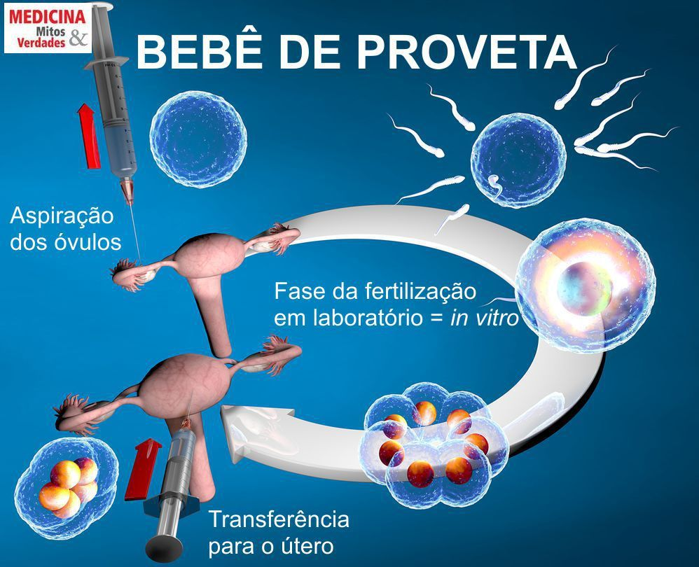 Bebê de proveta: como é feita a técnica de fertilização in vitro