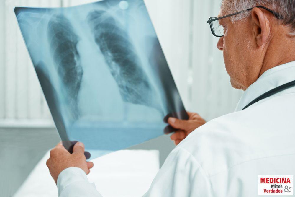 Por que a gripe pode evoluir para pneumonia?