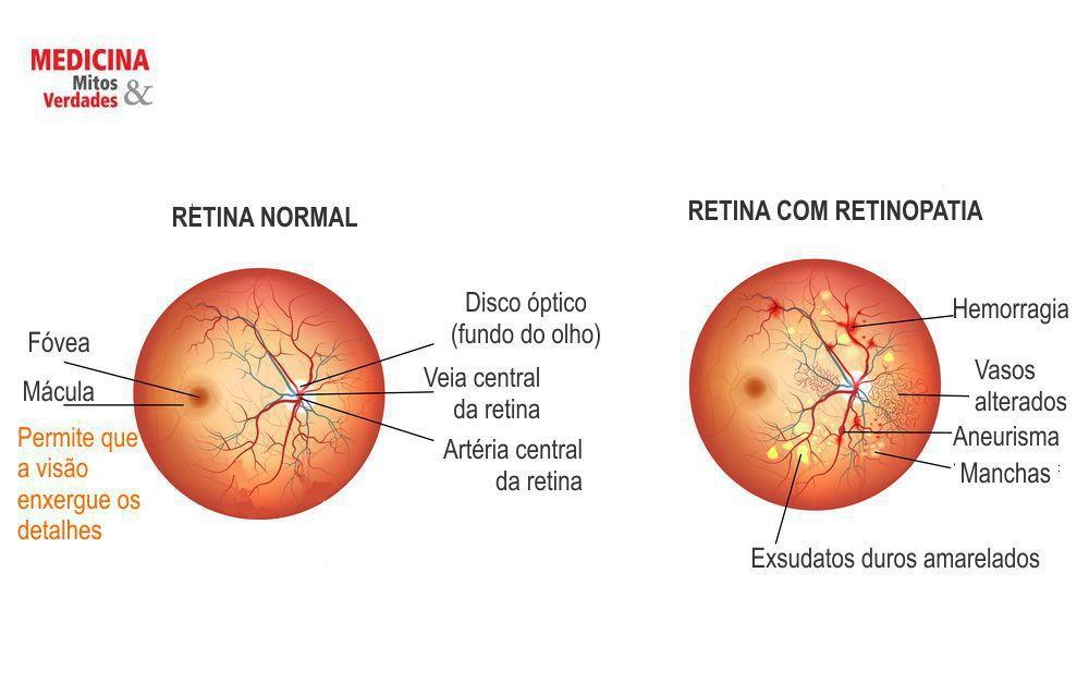 Hipertensão não controlada pode causar cegueira