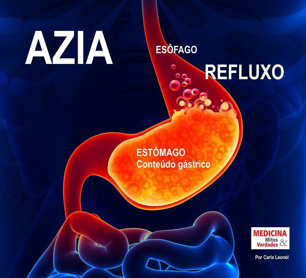 Azia e indigestão: causas, sintomas e tratamento