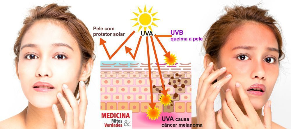 Preciso usar protetor solar no inverno?
