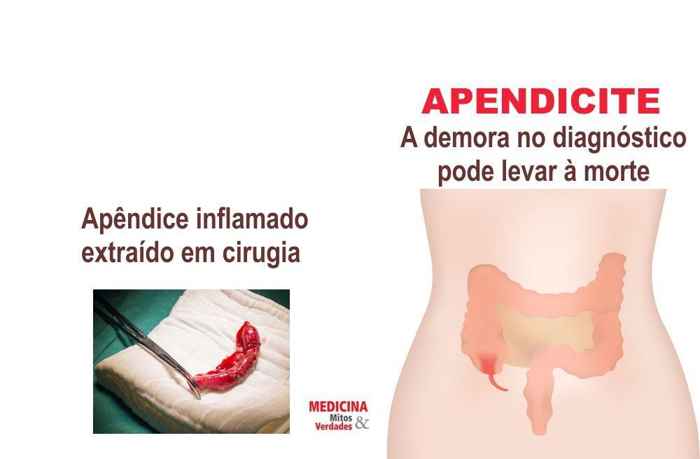A importância do diagnóstico da apendicite aguda nas primeiras 24 horas