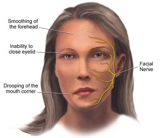 Paralisia facial súbita