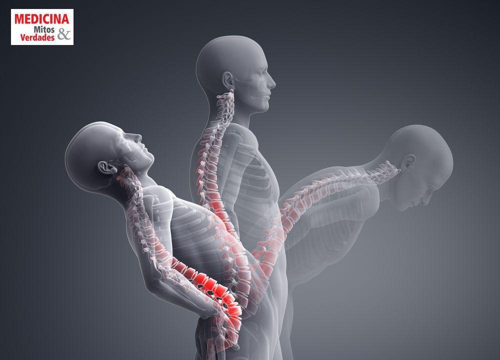 Dor ciática e dor lombar
