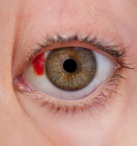 Estourou uma veia no olho?